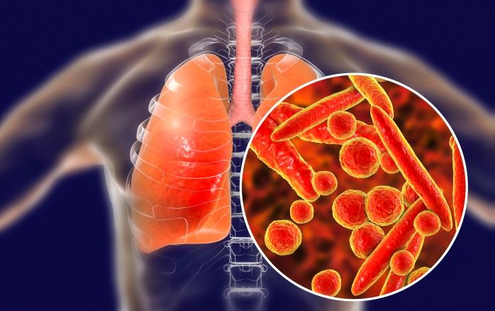 Pneumokokken Impfung Gerade Jetzt Schutze Deinen Nachsten Vor Bakterieller Lungenentzundung Und Covid 19 Komplikationen Lazarus
